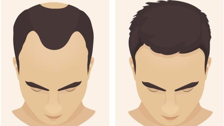 La coronilla y la parte frontal son algunas de las secciones en donde se presentan los problemas de calvicie